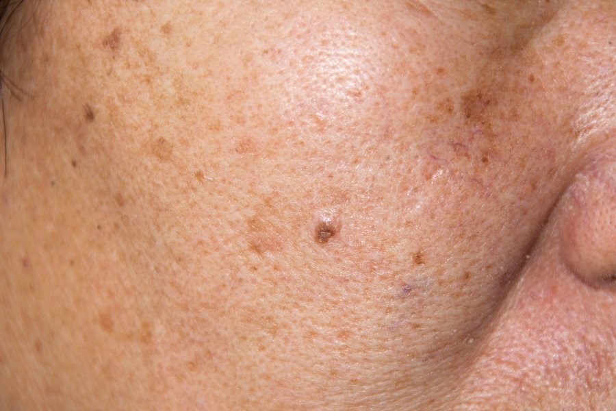 Age Spot Treatment Face