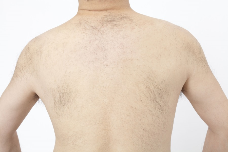 Speaking, would men with hairy back pictures