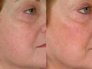 Cheek Thread Veins Treatment Hertfordshire