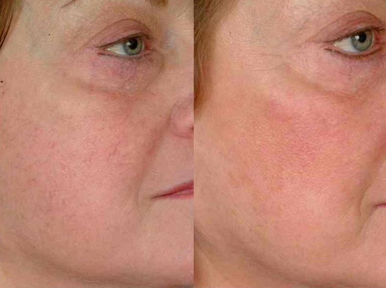 treatment for red veins on face