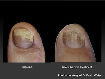 Fungal Nails Onychomycosis Laser Treatment Of Severe