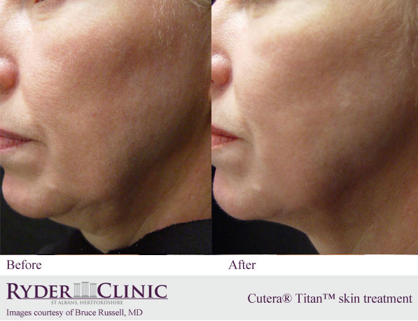 Face skin tightening treatment