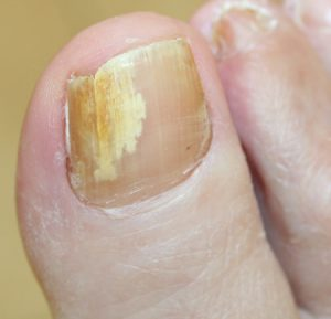 Fungal Nails (Onychomycosis) | Laser treatment of severe nail fungus ...
